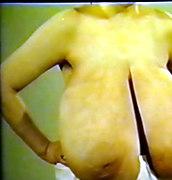 russian huge tits macromastia
